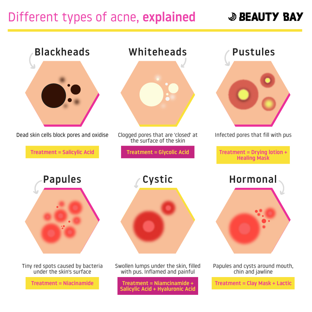 6 Different Types Of Acne Explained Beauty Bay Edited